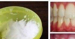 วิธีทำฟันขาวง่ายๆ ด้วยตัวคุณเอง ง่ายแถมราคาถูกแสนถูก