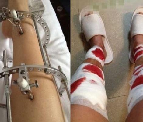 ผ่าตัดแก้ขาโก่ง เอาเหล็กเจาะขาเน้นๆ เห็นแล้วสยองสุดๆ (มีคลิป)