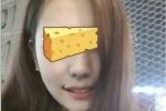 ศัลยกรรมปากยิ้ม ! เกาหลีพัฒนาไปไกล ถึงไม่ยิ้มก็ทำปากให้เหมือนคนยิ้มตลอดเวลาได้