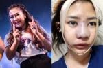 รีวิวศัลยกรรม สาวไทยไปโมหน้าใหม่ที่เกาหลี แถมดูดไขมันทั้งตัว! ลงทุนขนาดนี้ ผลลัพธ์อลังการมาก!!