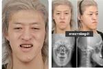 ศัลยกรรม หนุ่มญี่ปุ่นผู้มีใบหน้าผิดรูป หน้าเบี้ยว! กับผลลัพธ์ที่น่าทึ่ง กลายเป็นหนุ่มหล่อโฮกไปแล้ว!!