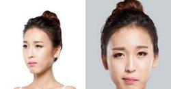รีวิวศัลยกรรมเกาหลี พลิกโฉมสาวหน้าเบี้ยว ด้วยการทำศัลยกรรมใหม่ทั้งหน้า!! สวยหยาดเยิ้มเลย!!