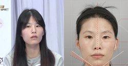 ศัลยกรรมปรับรูปหน้า เปลี่ยนคุณแม่หน้าตอบ ให้เป็นสาวสวยหวาน!! แทบไม่เชื่อสายตาตัวเอง!