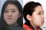 เปลี่ยนไปใน 3 เดือน!! สาวตัดสินใจทำศัลยกรรมแก้ไขรูปหน้าใหม่ แต่ผลลัพธ์ที่ได้กลับเกินคุ้ม!!!