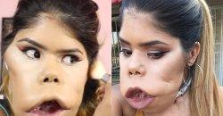 สาวผู้มีใบหน้าที่ผิดปกติ แต่ผู้หญิงหยุดสวยไม่ได้ ตอนนี้เธอเป็นช่างแต่งหน้าที่มีคนติดตามเป็นล้าน!
