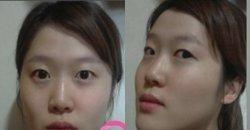 รีวิวศัลยกรรมเกาหลี แบบจัดเต็ม!! เรียกว่าแทบจะโมใหม่ทั้งหน้า ผลลัพธ์จะคุ้มค่าแค่ไหนมาดูกัน!!