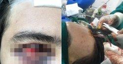 ศัลยกรรมทำหวิดดับ หนุ่มอยากหล่อเสริมหน้าผากจากคลีนิคเถื่อน สุดท้ายพบจุดจบที่โคตรสยอง!