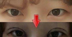 รีวิวทำศัลยกรรมตาสองชั้น หลังทำเพียง 11 วัน ก็สวยทันใจ! เปลี่ยนสาวหมวยเป็นคนใหม่!!