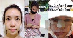 เมื่อสาวไทยไปทำศัลยกรรมที่เกาหลี กับรีวิวแบบแรงชัดจัดเต็ม!! เปลี่ยนไปแทบจะเป็นคนละคน!