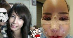 สาวประเภทสองชาวไทย กับการไปศัลยกรรมที่เกาหลี หลังทำงามแท้แลตะลึงมาก! สวยสุดๆ!