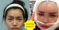 สาวประเภทสองศัลยกรรมเปลี่ยนชีวิต! ที่เรียกได้ว่าโมใหม่ทั้งหน้า ตอนนี้สวยจนต้องกราบ!!