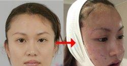 เผยเบื้องหลังศัลยกรรมสาวญี่ปุ่น ที่ไปอัพหน้าใหม่ถึงเกาหลี หน้าเปลี่ยนหนักมาก สวยแบ๊วไปเลย!
