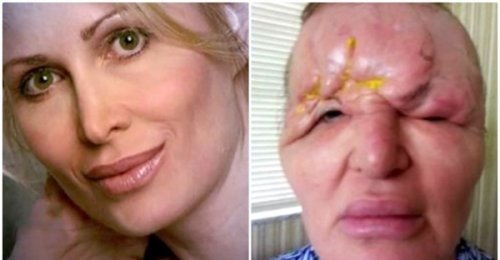 หญิงหน้าละลายหลังจากฉีดฟิลเลอร์!!  อยากเยาว์วัยแต่กลับตาบอดและเสียโฉม ไม่หวังให้เรื่องนี้เกิดกับใคร