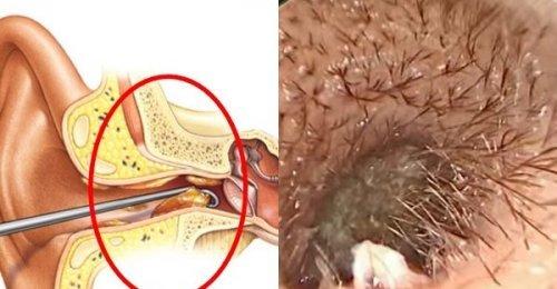 ขี้หู บ่งบอกโรค!! มาดู 7 ลักษณะอาการของขี้หู ที่รู้แล้วไม่ควรนิ่งเฉย!!