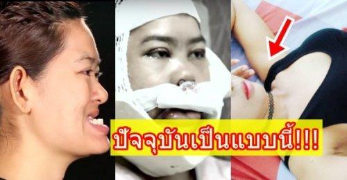 แอม Let Me In 2 สาวฟันยื่น ที่ได้บินลัดฟ้าไปศัลยกรรม ยังจำกันได้ไหม? ปัจจุบันเป็นยังไงบ้าง! เช็ค!!