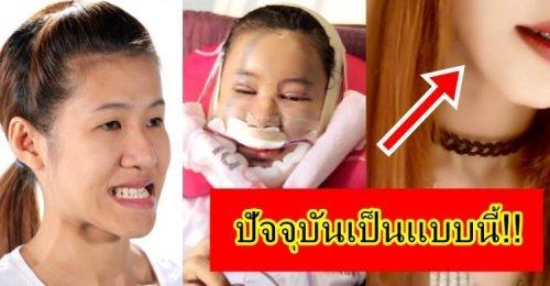 ต้นว่าน Let Me In สาวคางยาว ที่ได้พลิกชีวิตไปศัลยกรรมที่เกาหลี ยังจำกันได้ไหม! ปัจจุบันเป็นแบบนี้!