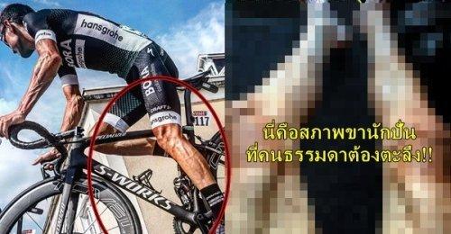 นักปั่นตูร์เดอฟร็องส์ เผยสภาพขาหลังปั่นจักรยานในรายการโหด สมควรแล้วที่คนปกติทำไม่ได้!!