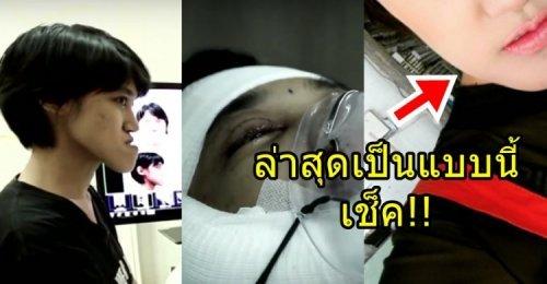 ปัด ดวงฤดี Let Me In สาวคางยาว ที่ได้พลิกชีวิตกับทีมแพทย์ไทย ยังจำกันได้ไหม! ล่าสุดเป็นแบบนี้!