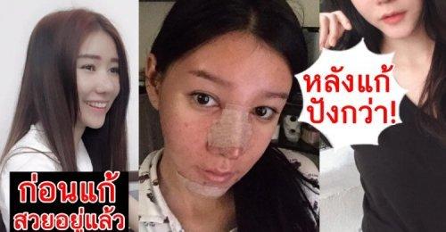 จำได้ไหม? สาวบินไปเมคโอเวอร์เกาหลีจนสวย! ล่าสุดอยากเป็นสาวลูกครึ่งเลยไปแก้จมูก-คางจนหน้าเป็นแบบนี้!