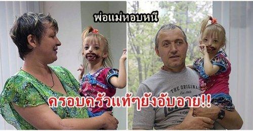 หนูน้อยอาภัพถูกครอบครัวปฏิเสธ เพราะอับอาย!! หลังเกิดมาไร้ริมฝีปากและคาง พ่อแม่สุดช้ำสังคมรังเกียจ!!