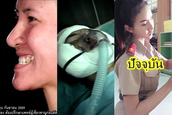 อ้อม อลิษา LET ME IN สาวคางยาว อัพเดทรูปปัจจุบัน หลังพลิกชีวิตทำศัลยกรรมกับทีมแพทย์ชาวไทย