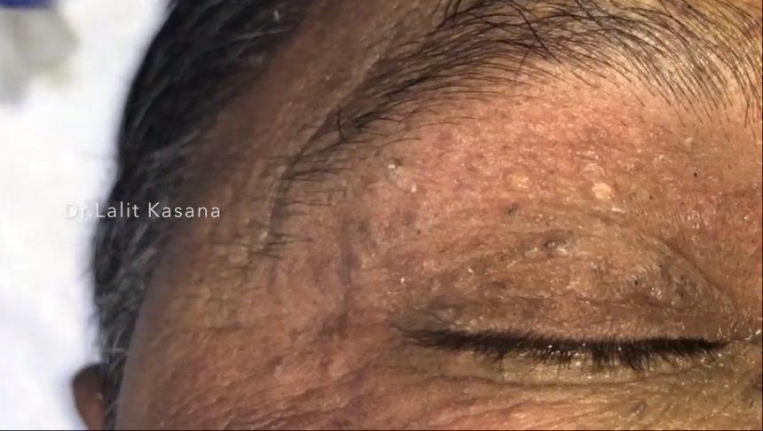 แพทย์เปิดคลิป เอาสิวหัวดำที่ติดอยู่ในเปลือกตาของผู้ป่วยมานานกว่า 50